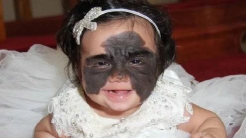 """女婴出生带""""蝙蝠侠""""胎记,被网友嘲讽是怪物,如今怎么样了?"""