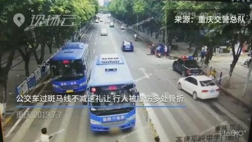 公交车过斑马线不减速礼让 行人被撞伤多处骨折