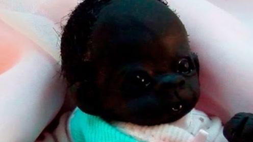 世界上最黑的婴儿,如今变成什么模样?看完让人不敢相信!