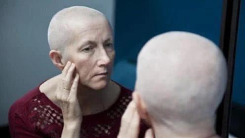为什么癌症患者都会掉光头发?实情让人心酸