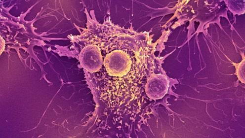 """身体出现这几个症状,可能是""""不死癌症""""的前兆, 速去医院"""