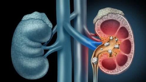 人缺少一个肾脏,对身体会有什么影响?没你想的那么糟!