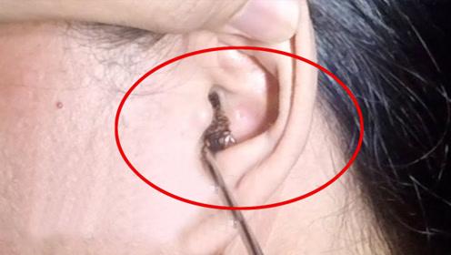 可怕!杭州小伙耳朵里住进一窝小蟑螂,医生掏出20多只
