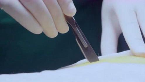 为什么手被扎个针眼都流血,做手术开刀却不见流血?这下长见识了