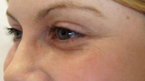 眼角皱纹怎么办?教你用牛奶加它自制去皱面膜,每天抹一抹,肌肤光滑紧致