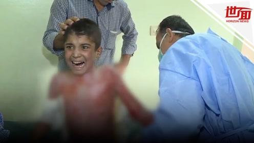土耳其涉嫌使用化武将被调查 男孩严重烧伤哭喊:求求别再烧了