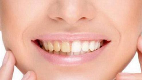 牙齿发黄不用怕,刷牙时加点它,让你告别大黄牙,再也不用洗牙了