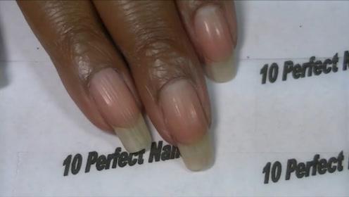为何有些人的手指甲会出现竖纹,是身体出现毛病了吗,看完才知道