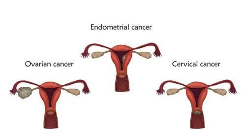 子宫内膜癌的3大临床表现,女性要多上心了,早知道早治疗!