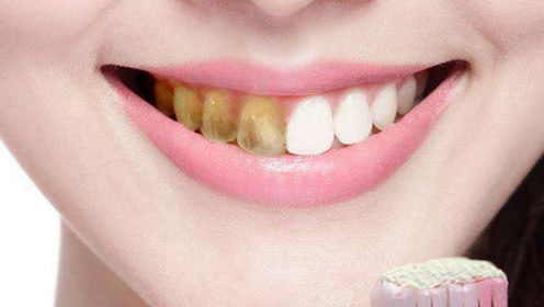 牙黄牙齿满污垢?抹点厨房里的便宜货,大黄牙一分钟就能变白