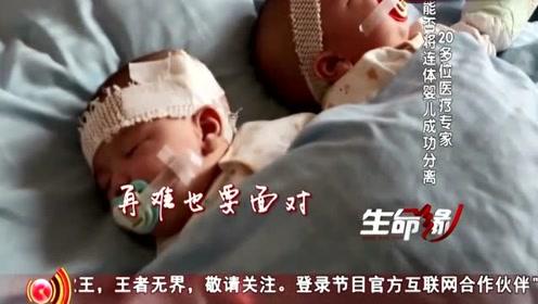 生命缘:臀部相连的连体婴儿分离手术,20个医生3个病房整装待发!