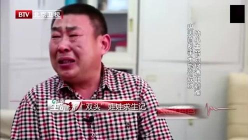 """男孩突然长出""""第二个头"""",竟是全国罕见恶性肿瘤,父亲崩溃痛哭!"""