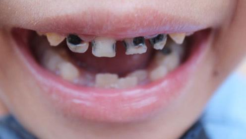 宝宝牙齿变黑却不是龋坏 原来是这3个原因