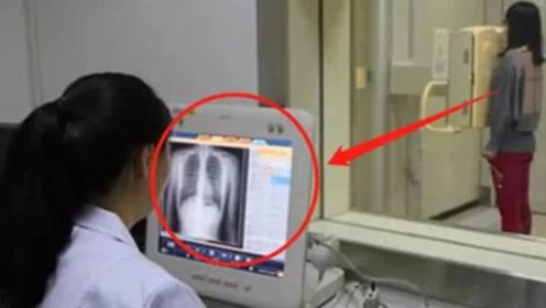 """女生做""""胸透""""时,医生可以看见什么?画面很震撼"""