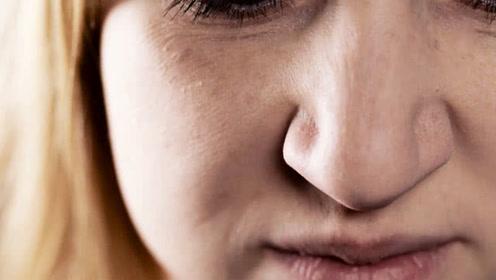 英国神奇大妈鼻子有特异功能 闻人分辨帕金森患者