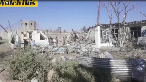 阿富汗南部汽车炸弹爆炸 伤者躺在医院头缠绷带