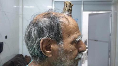 """印度74岁老人跌倒后头上长角 如今10厘米成真实版""""小龙人"""""""