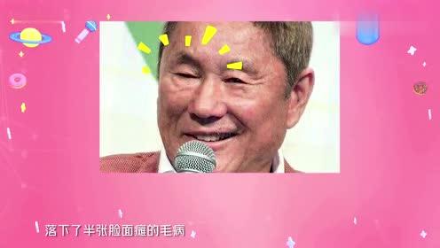 乔碧萝登日本电视节目,竟然把面瘫北野武都逗笑了