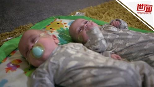 英国最小双胞胎奇迹存活:手掌大小 比一罐饮料还轻