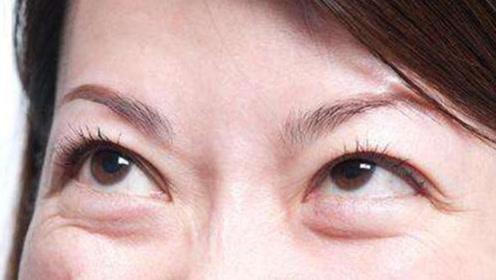教你一个方法消除黑眼圈和眼袋,省钱又好用