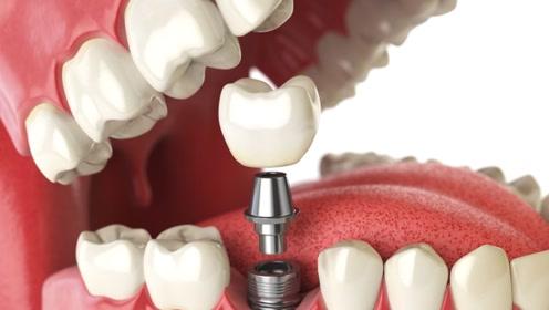 3D展示医生是如何种牙的,拔掉坏牙瞬间,忍不住捂住腮帮子!