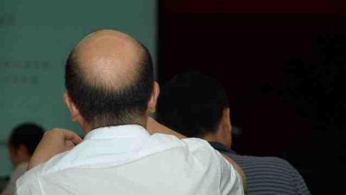 """""""头顶大事""""!中国脱发人群超2.5亿,每6人就有1人脱发"""