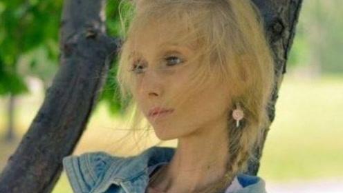 外国女模特减肥过度,每天只喝水不吃东西,得厌食症成皮包骨!