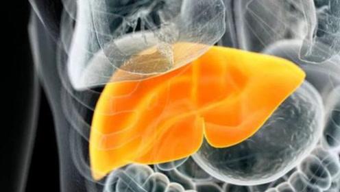 为啥脂肪肝的人越来越多?想要去掉肝脏脂肪,应该如何做?