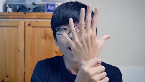 救命!我真的长出第六根手指了该怎么办!